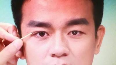 《寻医问药》:主持人做了双眼皮后是这样的