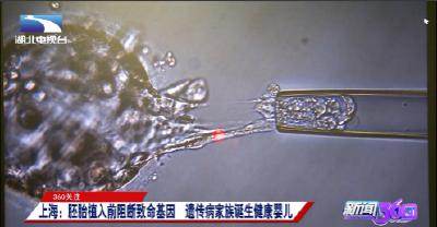 360关注:上海:胚胎植入前阻断致命基因  遗传病家族诞生健康婴儿