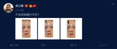 岳云鵬面膜照被做成手機殼 本尊卻關心銷量如何