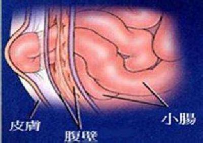 飲食養生匯|男女老少都有可能得腹股溝疝