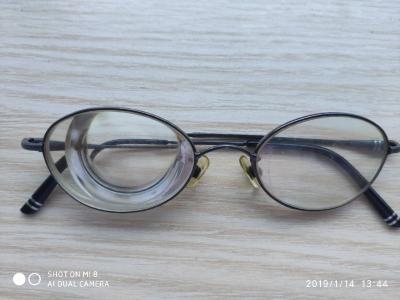 钟祥某患者成功治愈2600度超高近视