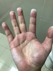 这双手——致敬战斗在防控一线的医务人员!