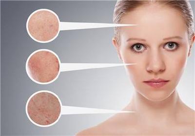 激光美容会令皮肤变薄?正规操作不会出现问题