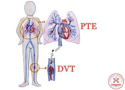 """【科学防控】宅在家预防新冠肺炎,还需警惕""""隐形杀手""""VTE"""