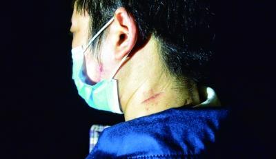 八达岭老虎伤人案18日将开庭 受伤女子索赔69万元